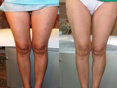 Escleroterapia resultados durante antes depois