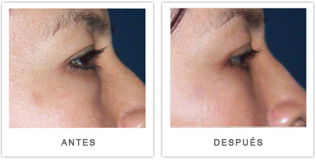 antes e depois da blefaroplastia