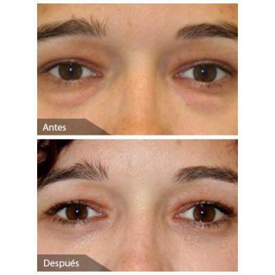 bolsas nos olhos antes e depois