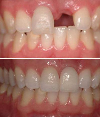 como é feito um implante de dentes