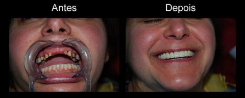como fazer implante dentário