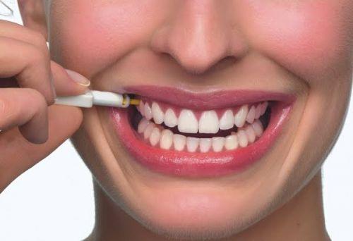 dentes lindos após o implante