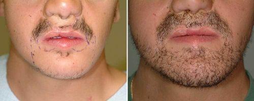 implante de barba antes depois