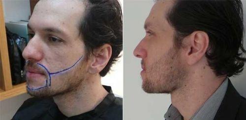implante de barba antes e depois