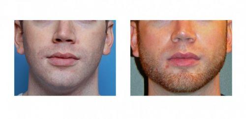 implante de barba como funciona