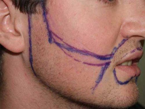 implante de barba desenho