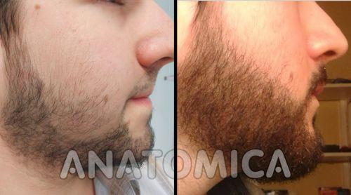 implante de barba funciona