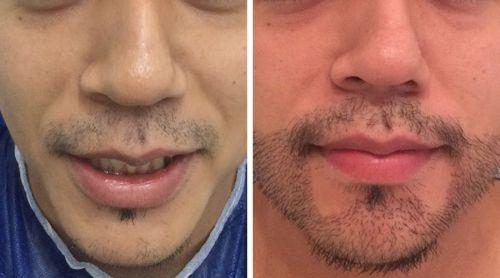 implante de barba preço valor