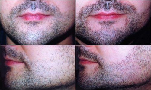implante de barba preço