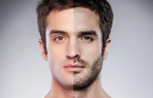 implante de barba resultados