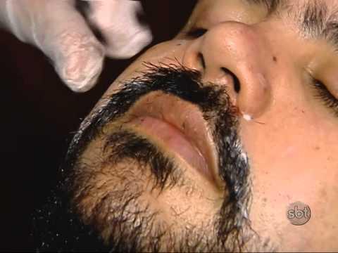 implante de barba tecnica