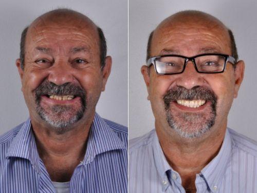 implante de dentes resultado