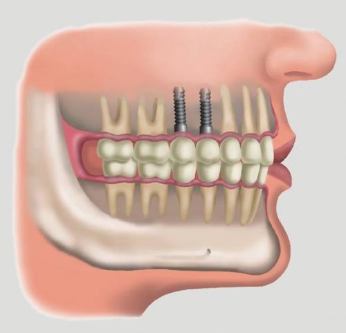 implante dentário como fazer gratuito