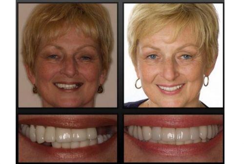 implante dentário como fazer
