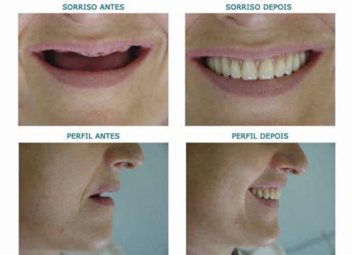 implante dentário doi preço