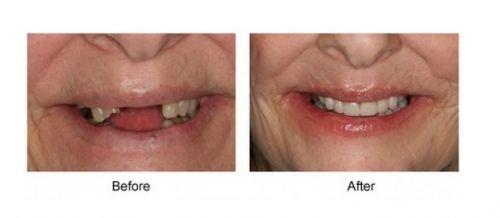 implante dentário doi