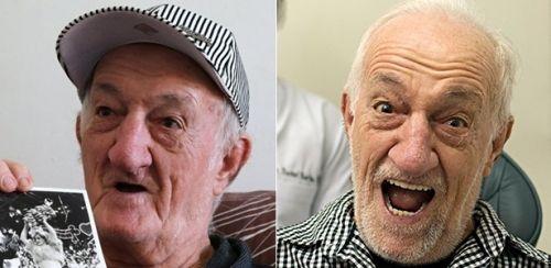 implante dentário famosos