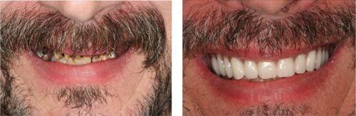 implante dentário gratuiti