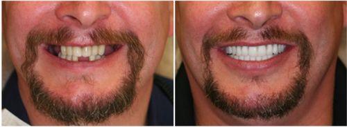 implante dentário preço como fazer