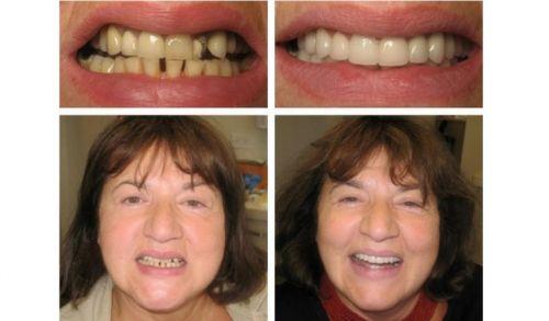 implante dentário resultados