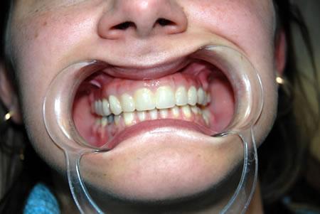 implante dentario procedimento