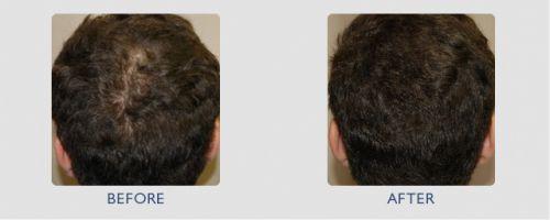intradermoterapia para cabelo
