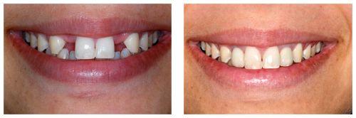 protese dentaria antes e depois