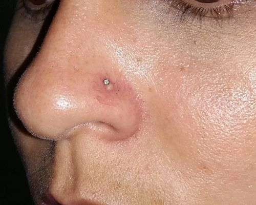 queloide no nariz