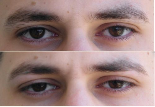 sobrancelha masculina resultado