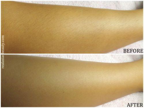 antes e depois dos cremes depilatórios