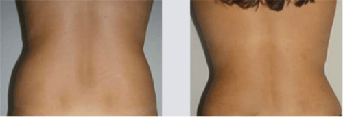 aplicação de enzimas para gordura localizada