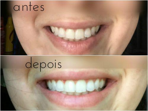 clareamento dental caseiro com bicarbonato como fazer