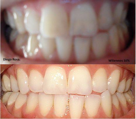 clareamento dental caseiro com bicarbonato como fica