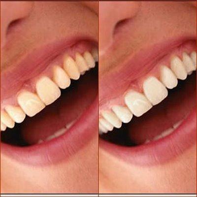 clareamento dental caseiro com bicarbonato passo a passo