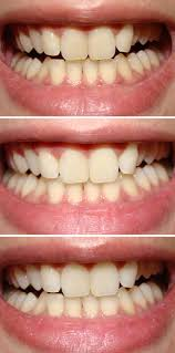 clareamento dental caseiro com bicarbonato resultados