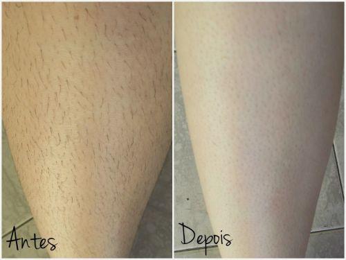 creme depilatorio resultados