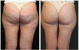 endermologia antes e depois
