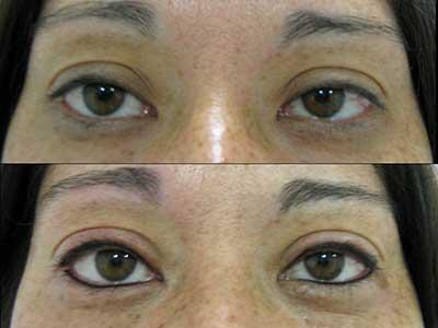 maquiagem definitiva nos olhos fotos antes e depois