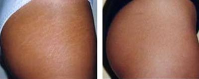 maquiagem definitiva para estrias na pele negra