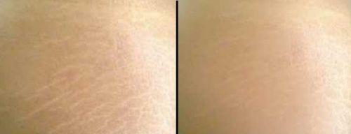 maquiagem definitiva para estrias pele negra