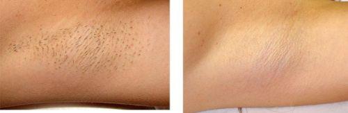 resultados antes e depois cremes depilação