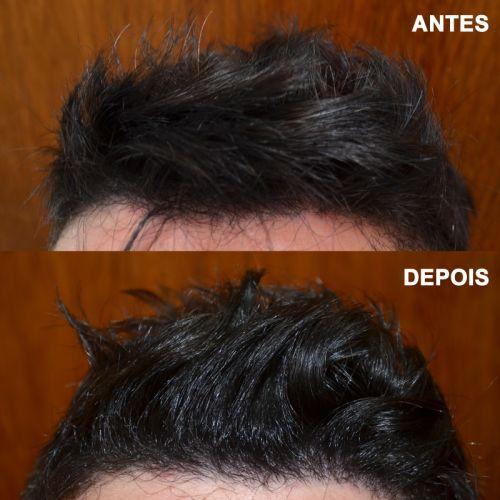 selagem capilar masculina antes e depois