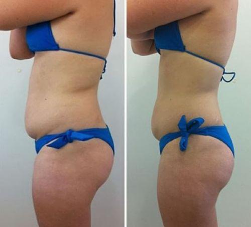 tratamentos para gordura localizada antes e depois