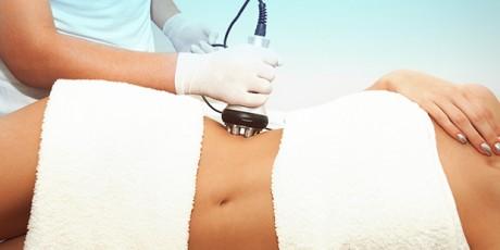 tratamentos para gordura localizada radiofrequencia