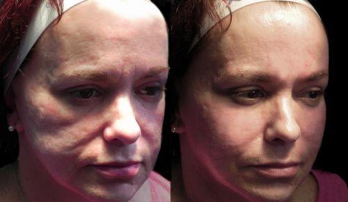 ácido hialurônico na pele