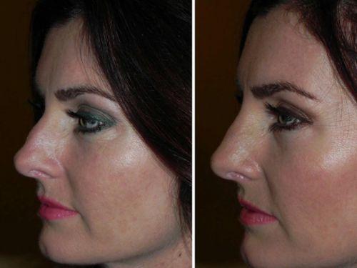 ácido hialurônico nariz