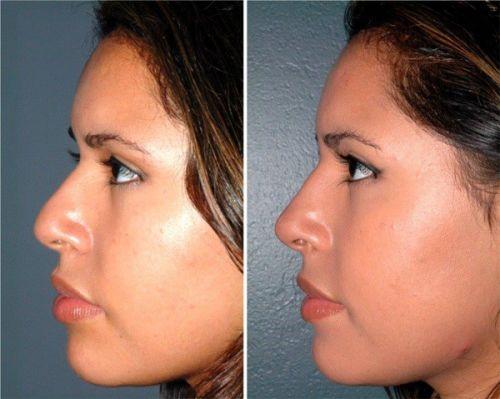 ácido hialurônico no nariz