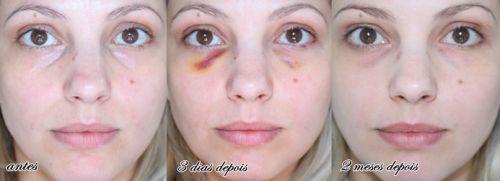 ácido hialurônico olheiras