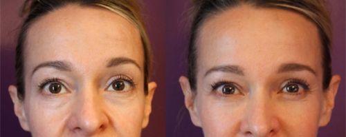 ácido hialurônico para olheiras