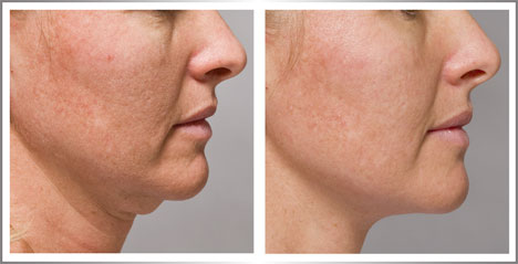 ácido hialurônico pele resultados